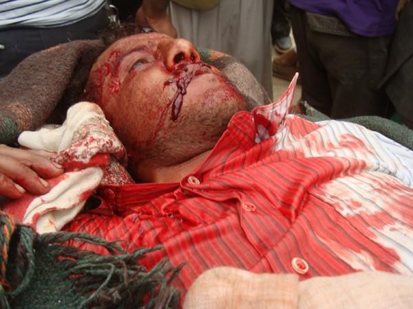 Foto-foto para syuhada' yaman korban pembantaian Rezim Diktator Ali ...